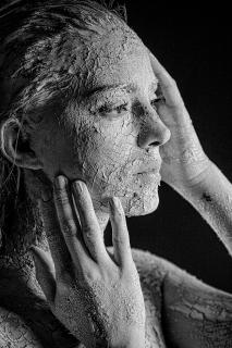 Rissige Haut