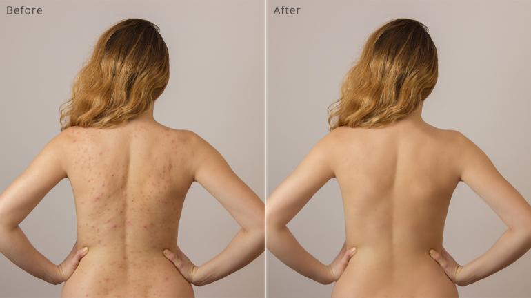 Vor und nach der Haut-Retusche